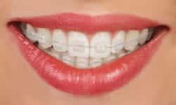 braces types of braces clear ceramic