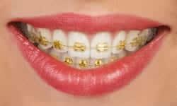 braces types of braces gold