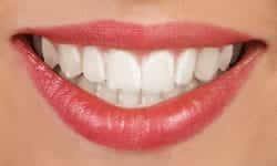 braces types of braces invisalign