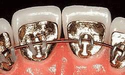 braces types of braces lingual