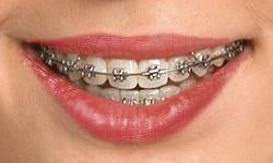 braces types of braces self ligating braces