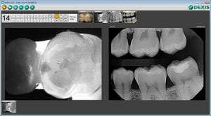 carivu xray comparison 5935a335463ca 300x1661 1