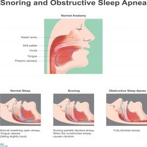 Boulder dental designs sleep apnea in boulder, co Dr. John Montoya dentist in Boulder, co sleep apnea dentist in boulder, co Snoring and obstructive Sleep Apne. Vector graphic.