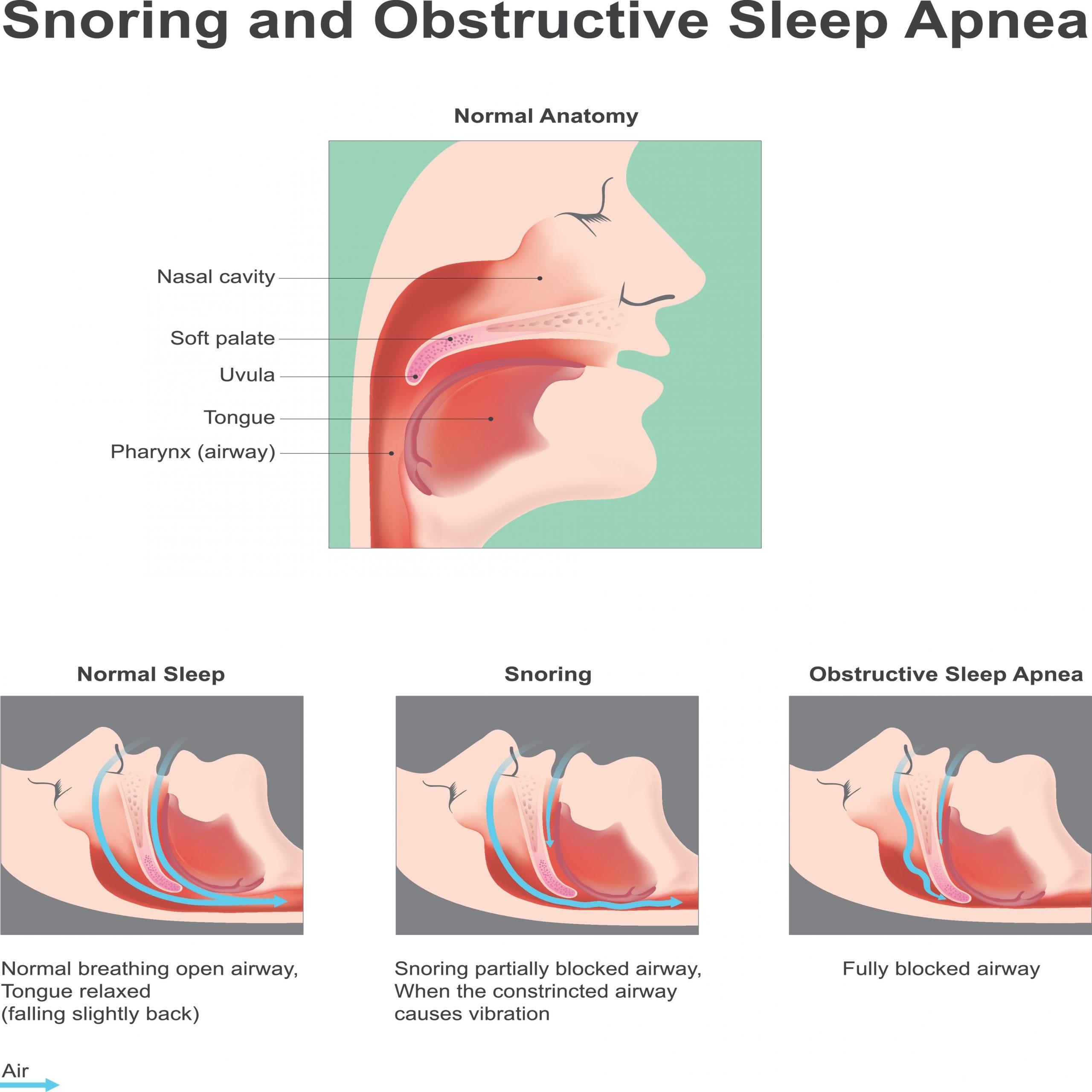Boulder dental designs sleep apnea in boulder, co Dr. John Montoya dentist in Boulder, co sleep apnea dentist in boulder, co Snoring and obstructive Sleep Apne. Vector graphic.