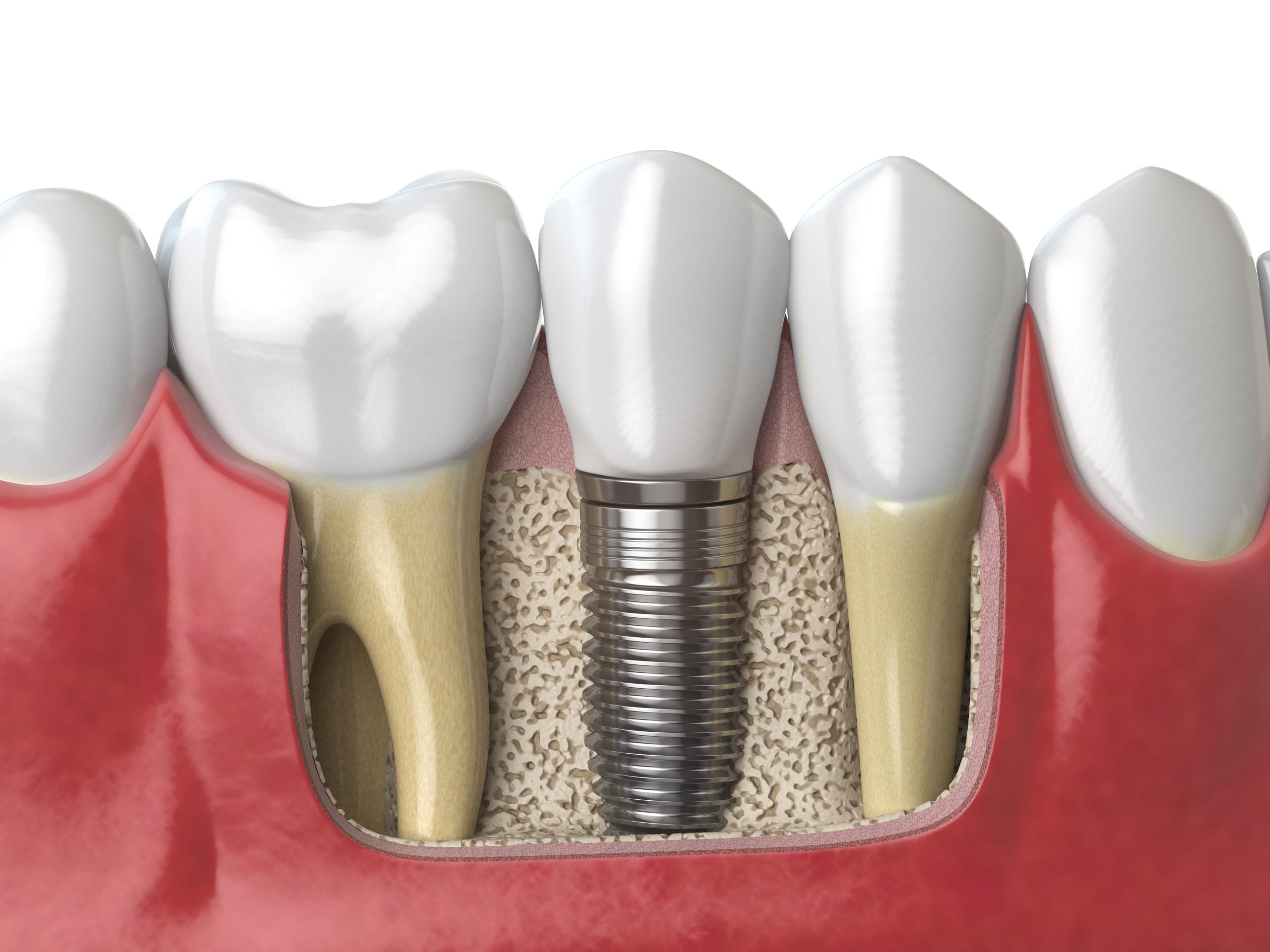 Dental Implants & Mini Implants: Which Is Right For Me? Boulder Dental Designs Dr. John Montoya, Dentist in Boulder, dental implants in boulder Anatomy of healthy teeth and tooth dental implant in human dentu
