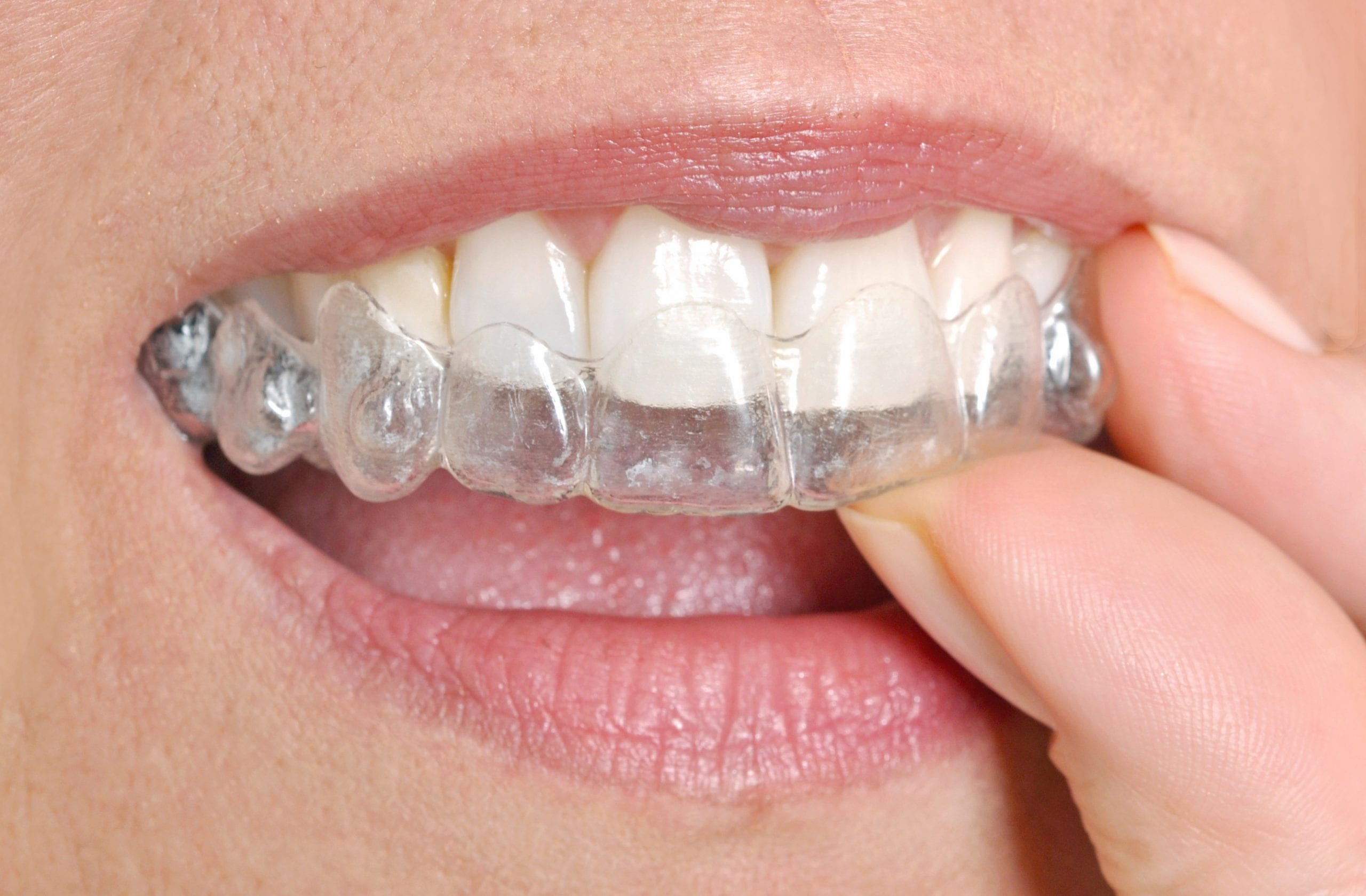 Is your smile not perfect? Have you been thinking about getting braces in Boulder, CO to get a straighter smile but worried about what they might look like? Well, have you considered Invisalign? Invisalign is a great way to get a straighter smile discreetly. Boulder dental designs Boulder, CO Dr. John Montoya woman-putting-in-her-invisible-braces-G67LFVW